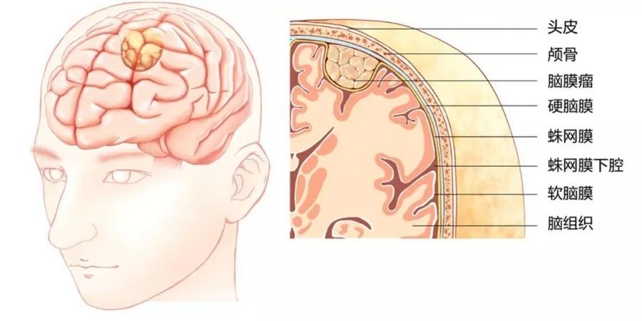 """听到""""脑膜瘤""""就觉得治愈无望?科学的治疗方法,了解一下!"""