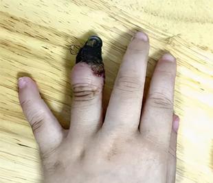 家人错误包扎致3岁女童手指坏死被截肢,正确包扎方式看这里